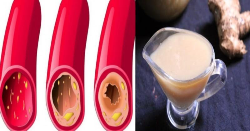 Wysoki cholesterol – jakie są przyczyny i objawy? Jak go obniżyć?