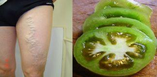 zylaki i pomidory