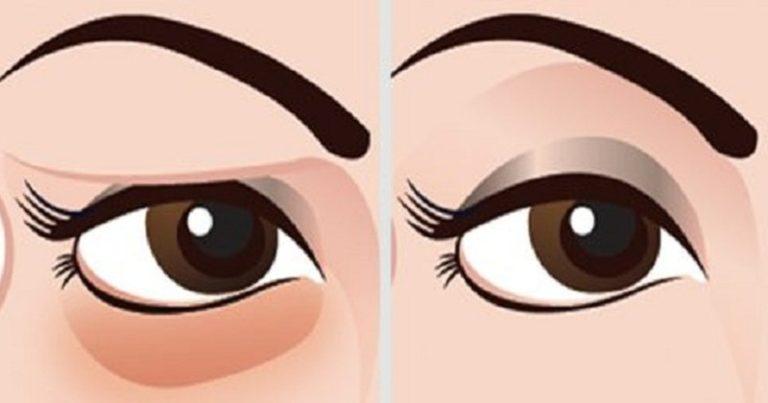 Poznaj najlepszy naturalny zabieg usuwający cienie i worki pod oczami
