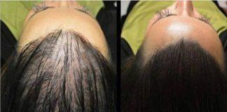 wzrost włosów1