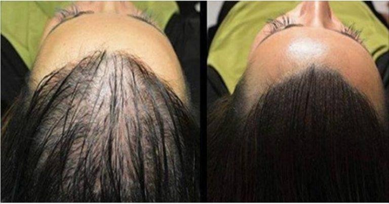 Preparat, który sprawi, że Twoje włosy będą rosnąć jak szalone
