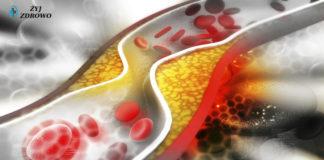 obniżyć cholesterol