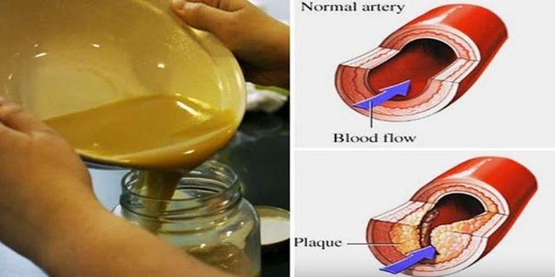 cholesterol (1)