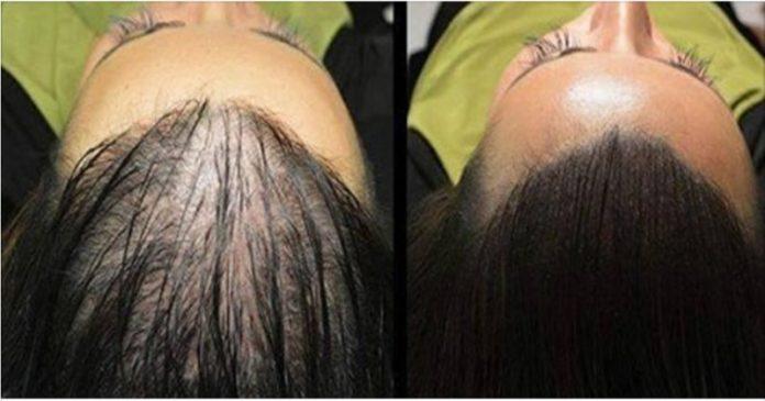 wzrost-włosów1