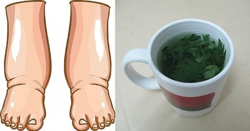 opuchnięte-nogi